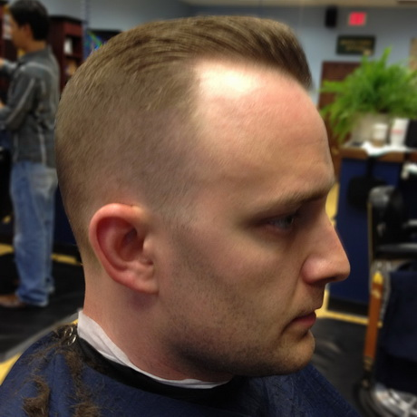 Permalink to Good Haircuts For Frontal Balding